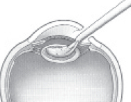 Phacoemulsification procedure