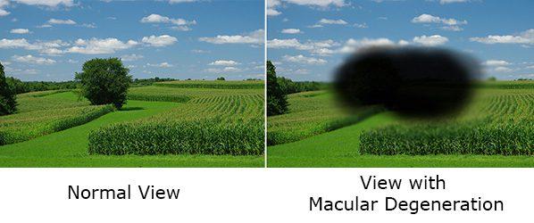 macular-1