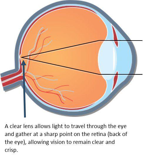 Cataract Diagram #1