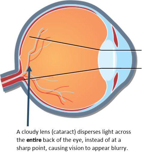 Cataract Diagram #2 Updated